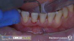 Hygiene Casre Report Acteon 001