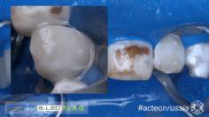 Препарирование 2.2 зуба (Rubberdam 155 Fruoroze TorVM Acteon 4K)