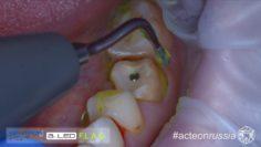 Полировка уступа культи зуба под металло-керамическую коронку ультразвуком (Acteon 019 4K A2)